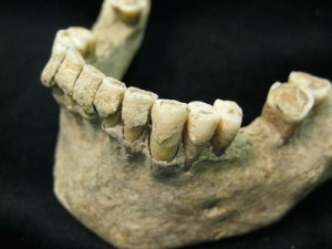 fossilised-dental-plaque-calculus-on-the-teeth-of-a-middle-aged-man-from-the-medieval-site-of-dalheim-germany-ca-ad-1100