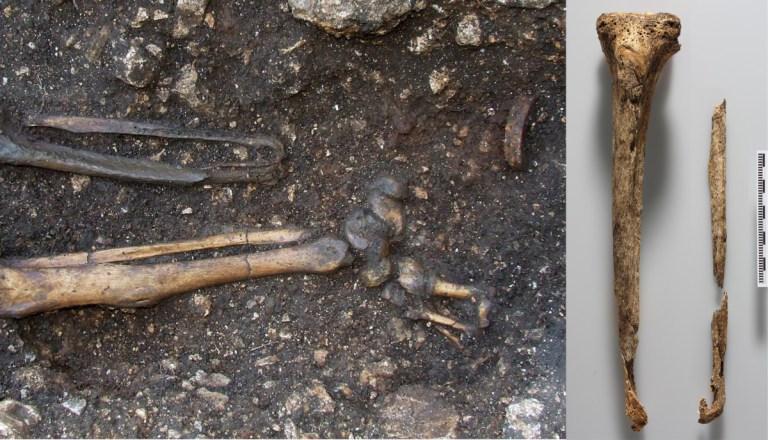 Scheletro maschile del VI secolo in situ durante lo scavo; a destra evidenza dell'amputazione del piede sinistro (Foto: OEAI, the Austrian Archaeological Institute.